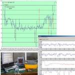 Anestesia y análisis de EEG