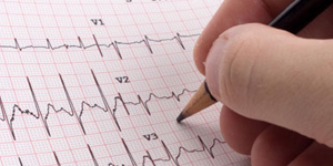 favaloro_electrocardiografia-1