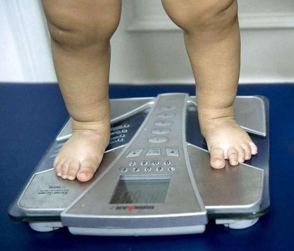La obesidad, sin freno: alertan que creció un 30% en los chicos argentinos