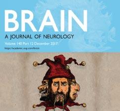 Investigación del INCyT tapa de la revista Brain