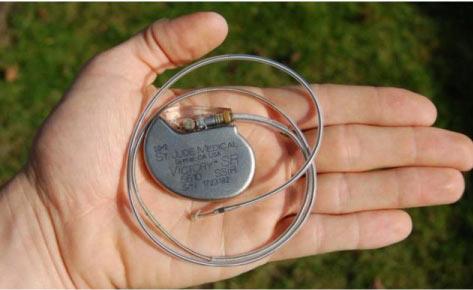 Pacientes con marcapasos o desfibriladores son beneficiados por el monitereo por wifi